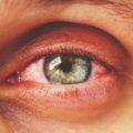 Wat is een oogontsteking